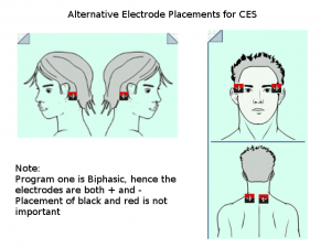 Alternative Electrode Placement for CES